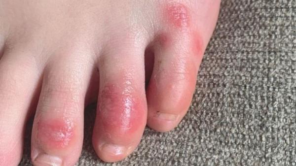 """'Ngón chân COVID' - Triệu chứng khiến chân đau rát như """"bỏng phóng xạ"""": Bác sĩ nói gì?"""
