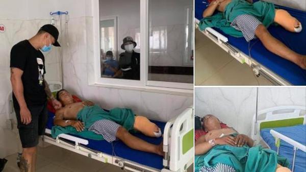 Cựu đội trưởng CLB Đắk Lắk phải cưa chân vì tai nạn giao thông