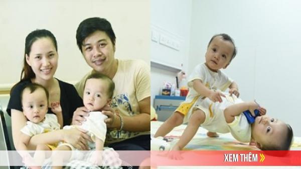 Cuộc sống của 2 bé song sinh trước ngày thực hiện cuộc phẫu thuật tách dính phức tạp nhất Việt Nam